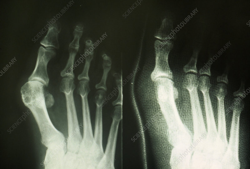 Bunion on big toe: X-ray pre- & post-surgery