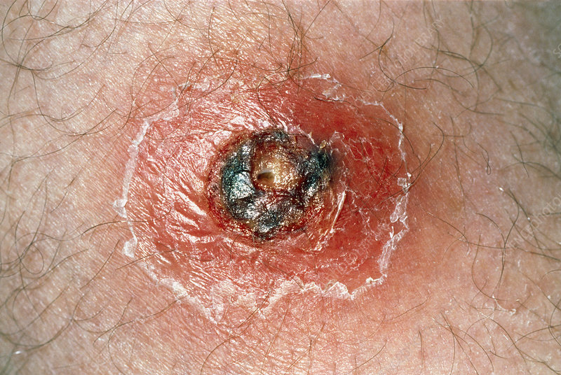 Close-up Of A Boil On The Upper Thigh Of A Patient