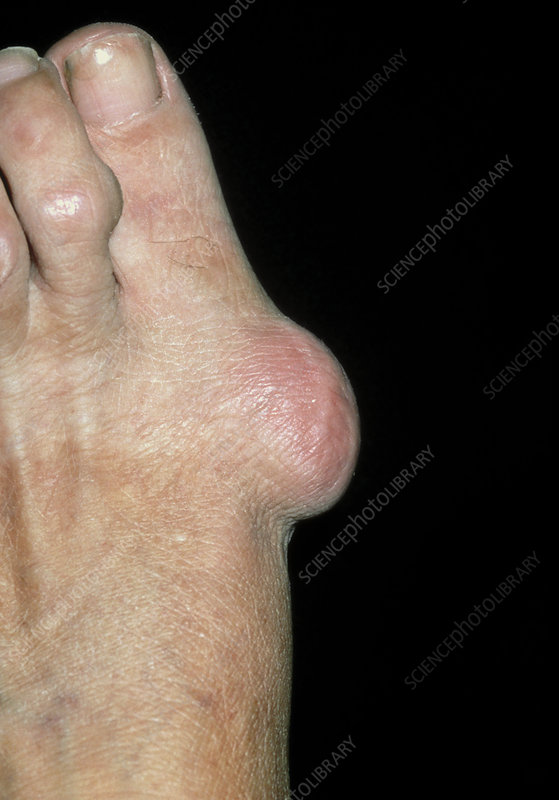 Bunion on foot of 60-year-old woman