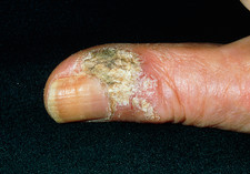 Scaly lesion on thumb due to Bowen's disease