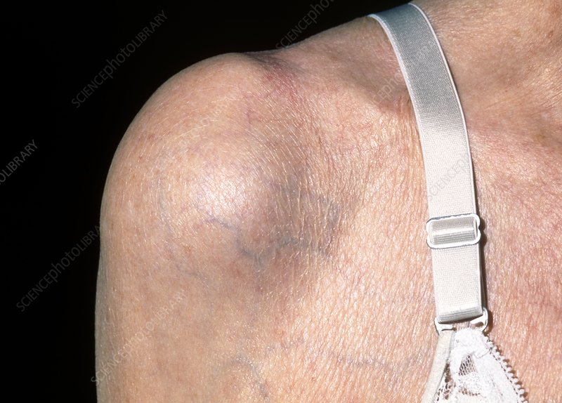 Bursitis causing shoulder swelling in old woman