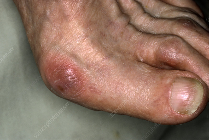 Close-up of a bunion on a foot