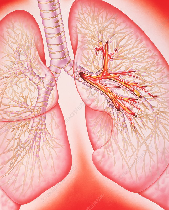 Lungs with bronchitis