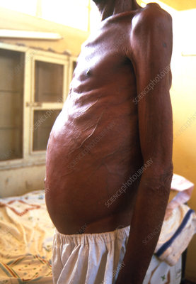 Distended abdomen of a man with schistosomiasis