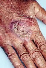 Fungal skin infection