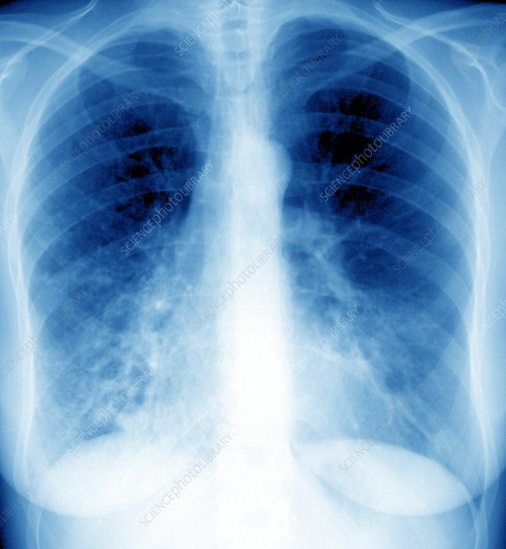 Bronchiectasis, X-ray