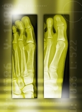 Bunion before and after surgery, X-rays