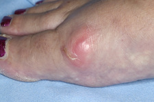 Inflamed bunion