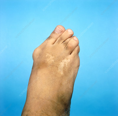Bunion on a middle-aged man's foot