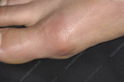 Bursitis of the big toe