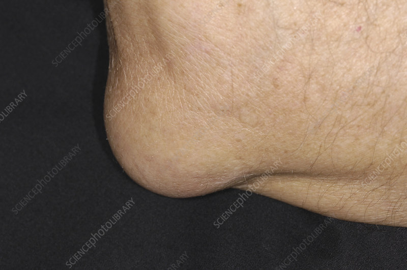 Bursitis of the elbow