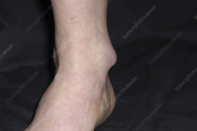 Bursitis of the ankle
