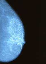 Mammogram of female breast with calcifications