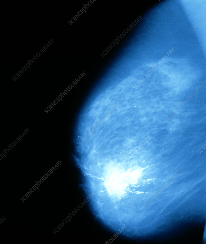 Female breast showing cancerous tumour