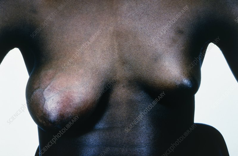 Giant fibroadenoma in the right breast of a woman