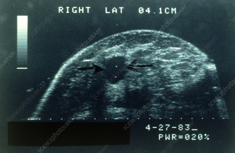 Ultrasound image of benign cyst on female breast