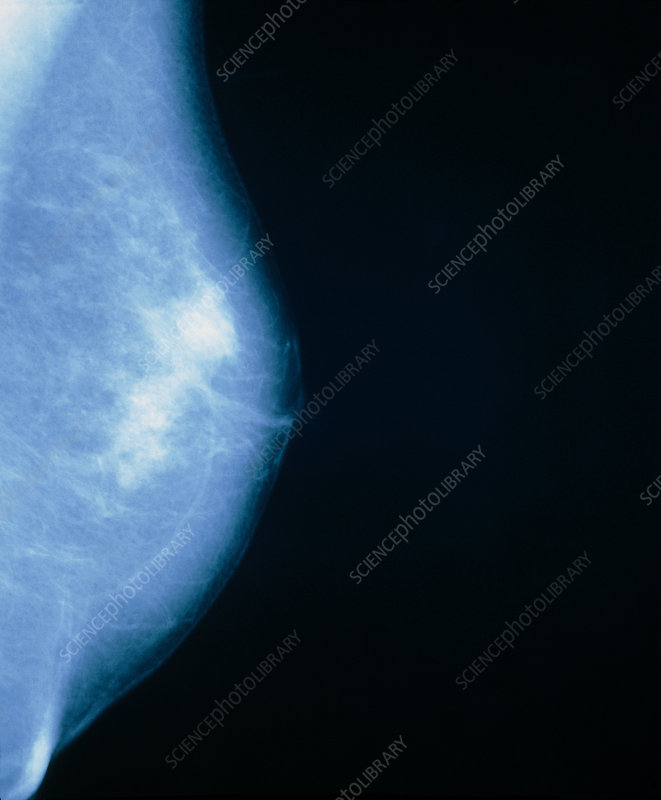 Mammogram of female breast showing a cyst