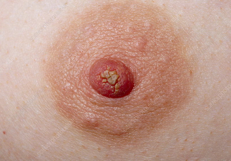 Close-up of woman's nipple showing a discharge