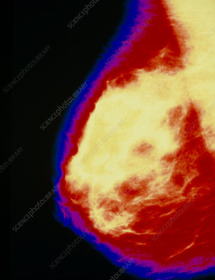 Coloured mammogram of a normal breast.
