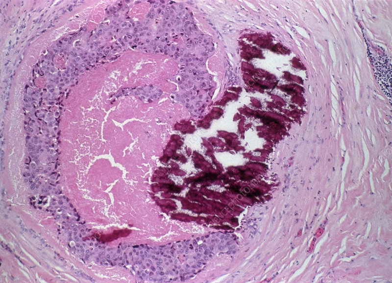 Light micrograph of intraductal breast carcinoma