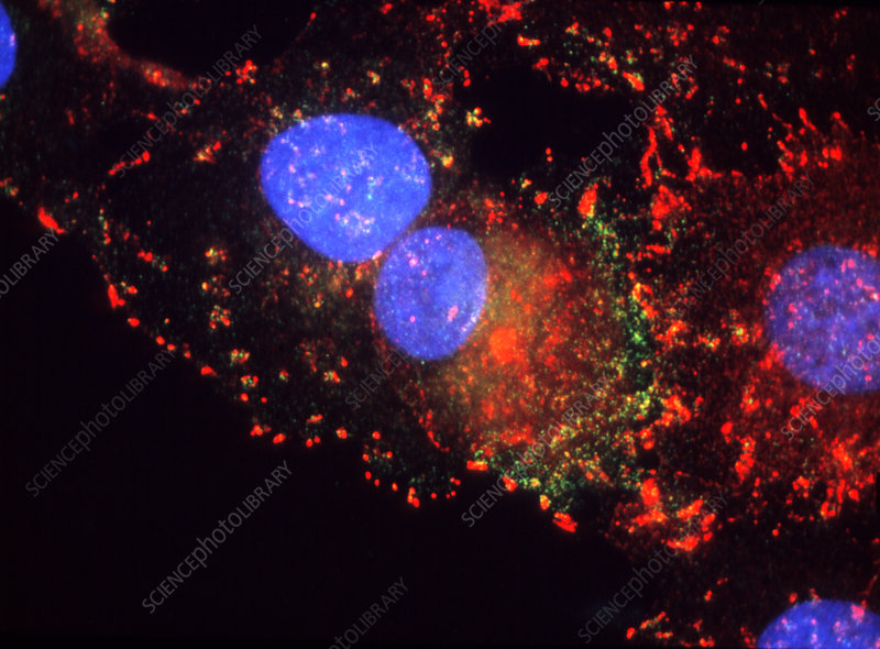 Immunofluorescent LM of human breast cancer cells.