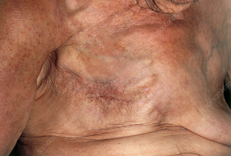 Scar after a mastectomy to remove breast cancer