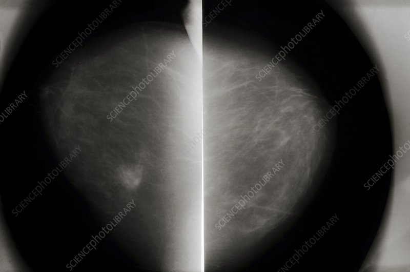 Mammogram of cancerous breast and normal breast