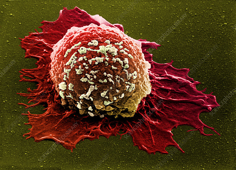 Coloured SEM of a breast cancer cell