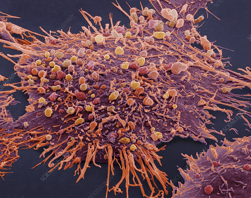 SEM of a breast cancer cell