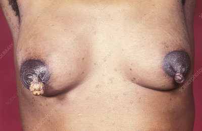 Breast nipple cancer