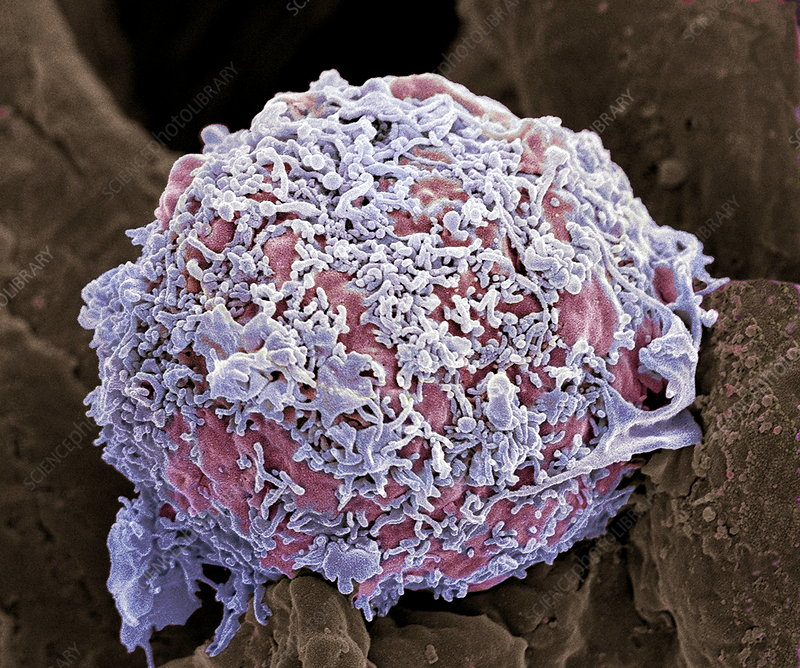 Breast cancer cell, SEM
