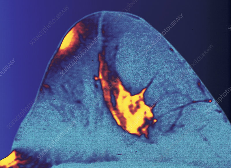Mammogram of breast carcinoma