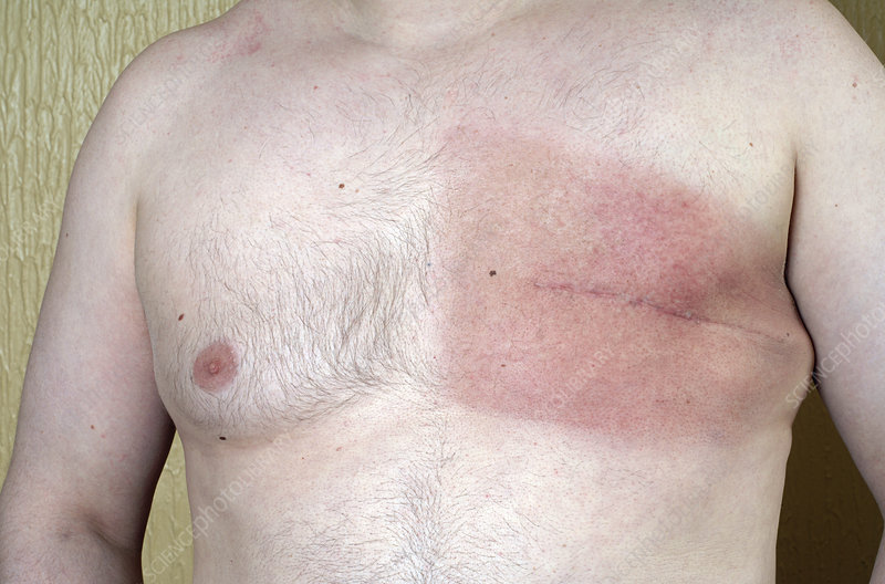 Swelling of the breast malw