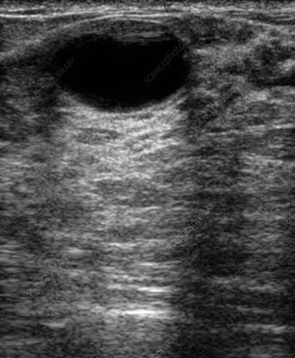 Fibrocystic disease, ultrasound scan