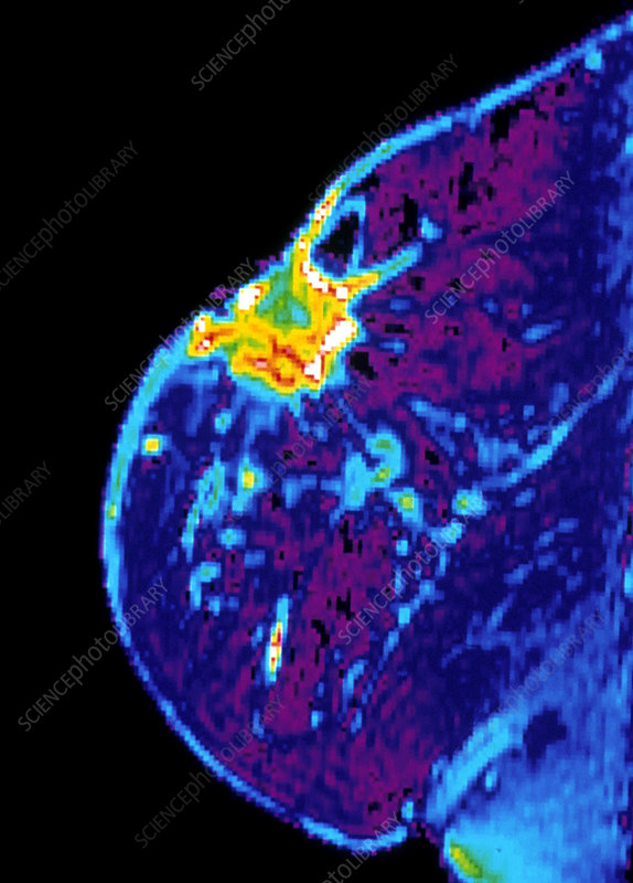 Breast cancer, MRI scan