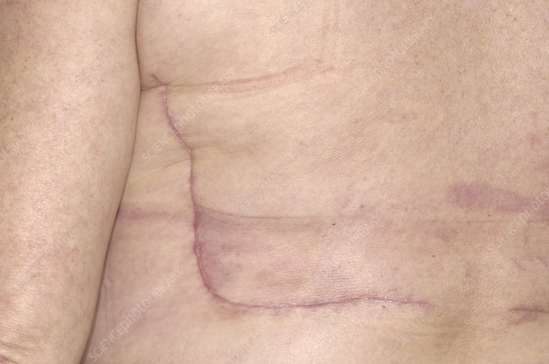 Breast cancer reconstruction surgery