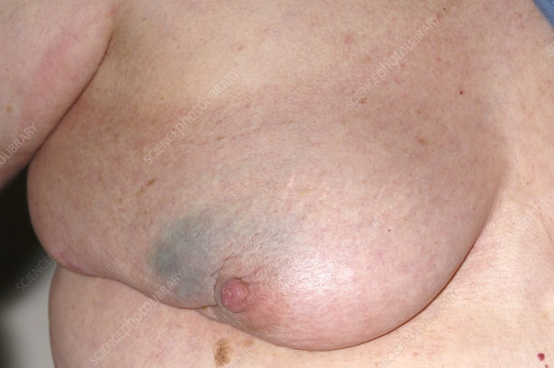 Breast cancer test after surgery