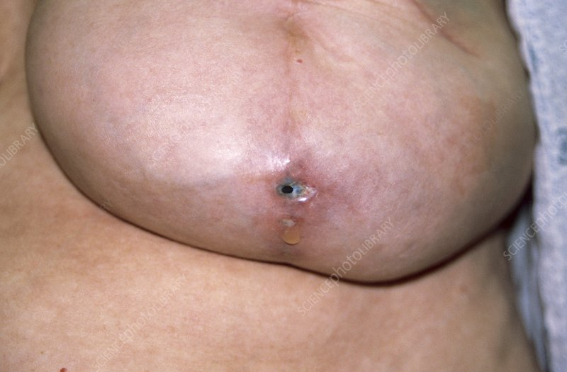 Infection following breast surgery