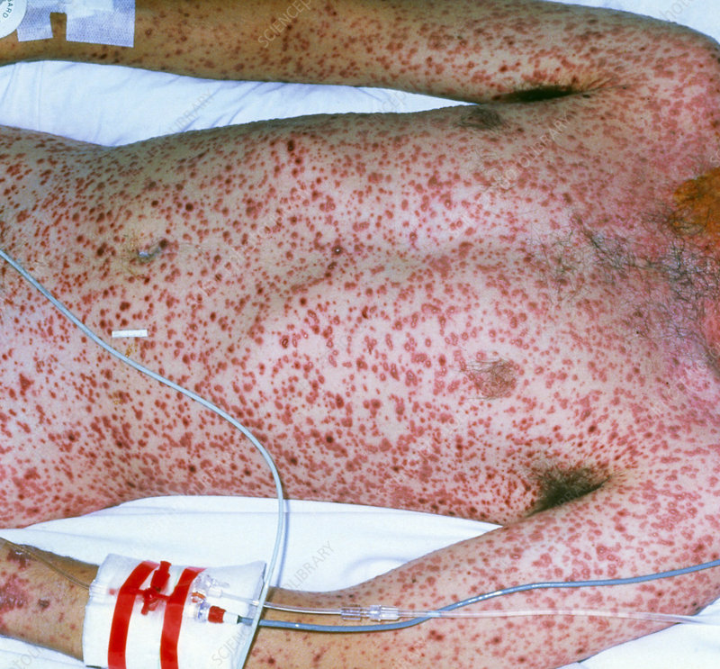 Adult with severe chickenpox