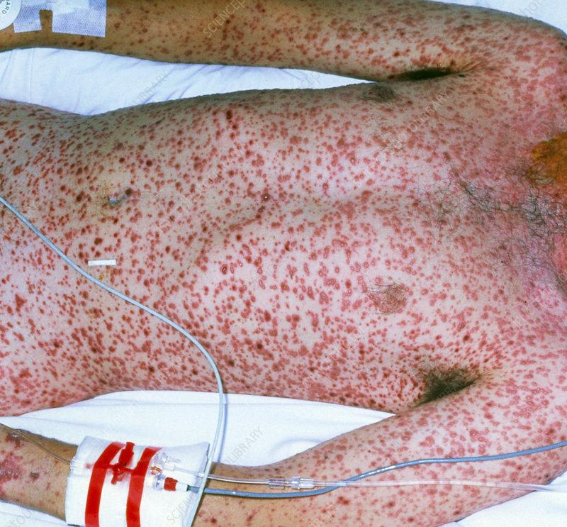 pneumonia rash - MedHelp