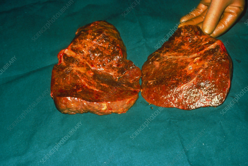 Liver showing evidence of cirrhosis