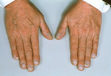 Hands showing cyanosis (Blueing of nail beds)