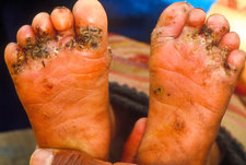 Chigoe fleas in feet of a three year old