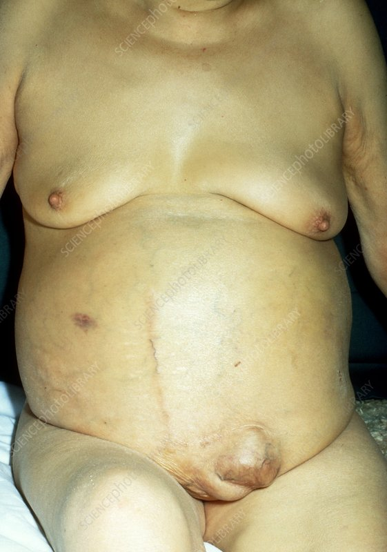 Patient with cirrhosis of the liver