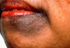 Chloasma (liver spot) affecting a woman's chin