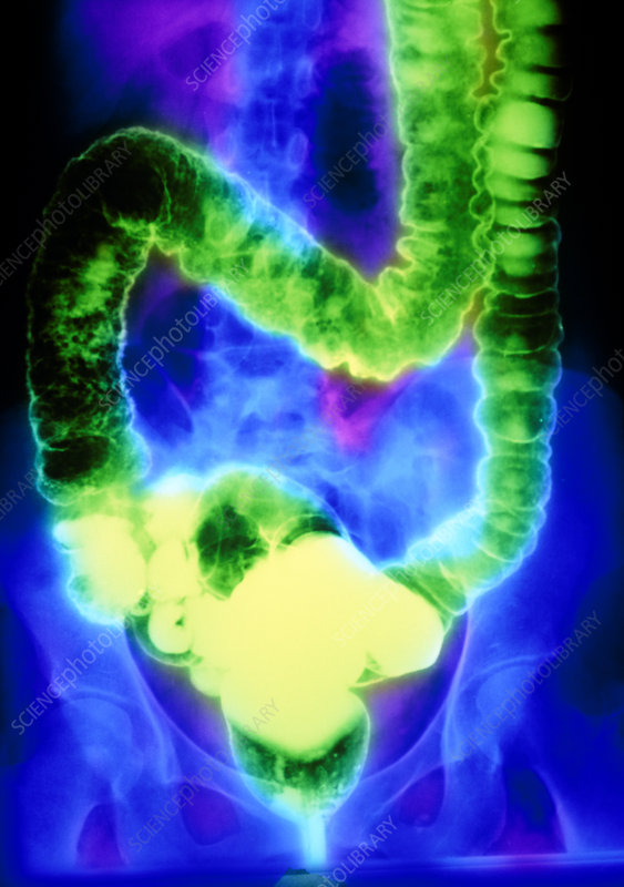 F/col double-contrast X-ray of ulcerative colitis