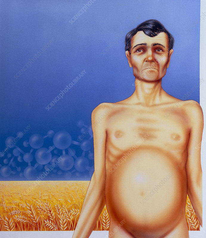 Artist's depiction of coeliac disease