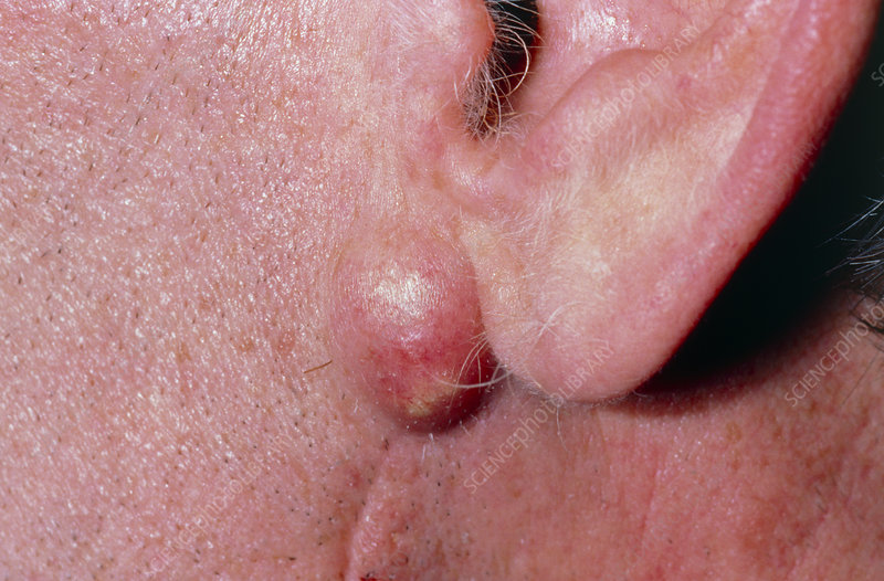 Infected sebaceous cyst on man's jaw (under ear)