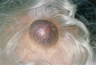 A sebaceous cyst on the head of an elderly woman