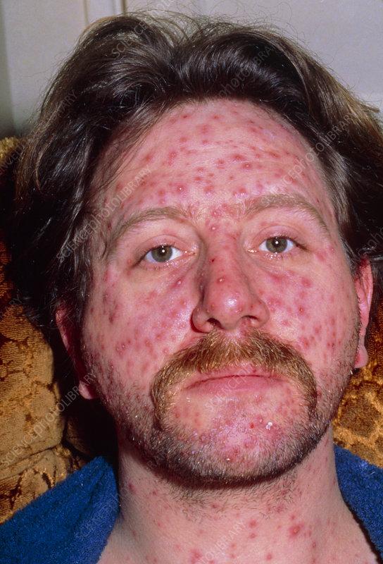 onset of chickenpox. CHICKEN POX RASH FROM VACCINE
